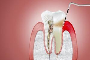 Эксперт рассказал еще об одном последствии коронавируса — выпадении зубов