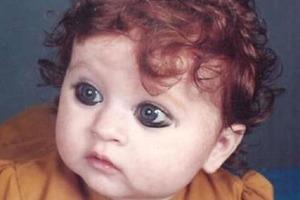 Малышку дразнили в детстве за необычную внешность. Фото индианки 20 лет спустя