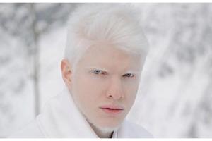 Модель-альбинос из Грузии показал миру свою вторую половинку: красота этой пары настолько необычна, что люди не могут описать ее словами. Фо