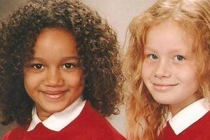 Им уже 19 лет: как выглядят сегодня уникальные близняшки (фото)