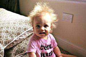 Девочка родилась с необычной шевелюрой. Как сегодня выглядит малышка (фото)