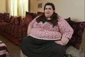 300-килограммовая девушка похудела почти на 200 кг и стала настоящей стройняшкой