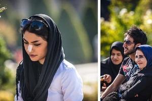 Почему иранские девушки носят пластыри на носах