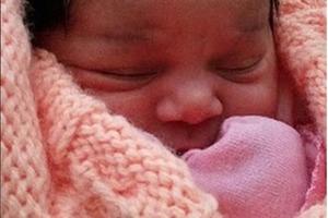 Малышка, унаследовавшая уникальную особенность, подросла. Какая она сейчас