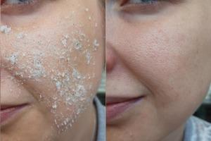 Для омоложения кожи моя мама использует соль. Ее лицо всегда выглядит свежим и подтянутым: делюсь рецептами красоты