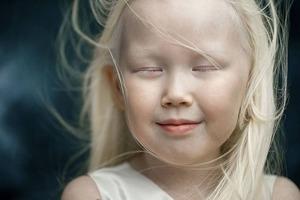 Редкая красота: девочка-альбинос из Сибири удивляет уникальной внешностью