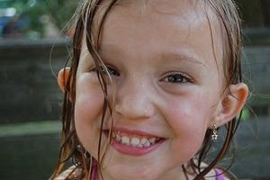 В школе из-за лопоухих ушей девочку дразнили сверстники. Хирург сделал ее красавицей (фото)