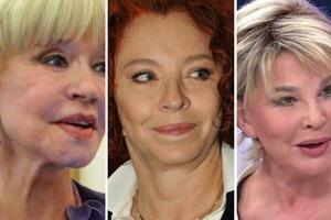 Жертвы пластической хирургии. Российские звезды, которых сегодня не узнать