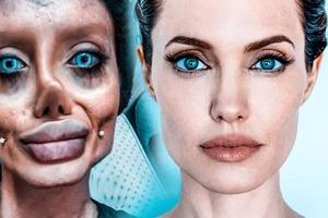 Чтобы быть похожей на Джоли, иранка сделала 50 операций