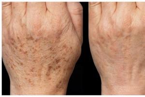 Темные пятна на коже рук: избавляемся от них с помощью домашних средств
