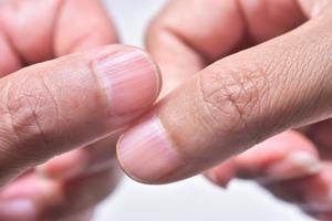 4 проблемы организма, которые можно определить по состоянию ногтей и рук