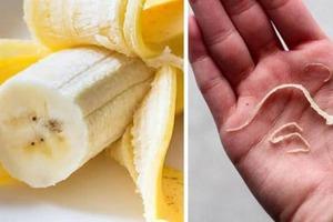 """Почему не стоит выбрасывать """"банановые нити"""": мнение экспертов"""