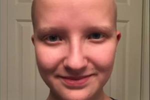 Девушка побрилась налысо, чтобы показать, как вырастают волосы за один год (видео)