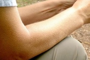 Мурашки по коже и рост волос оказались взаимосвязаны: тело таким образом спасается от холода