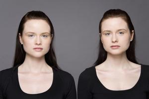 Чувствительность частично заложена в наших генах: исследование близнецов учеными Лондонского университета королевы Марии это подтверждает