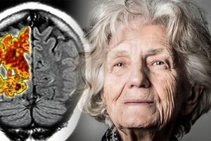 Простой анализ крови может выявить болезнь Альцгеймера за 16 лет до появления признаков