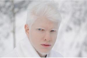 Модель-альбинос из Грузии показал миру свою вторую половинку: красота этой пары настолько необычна, что люди не могут описать ее словами